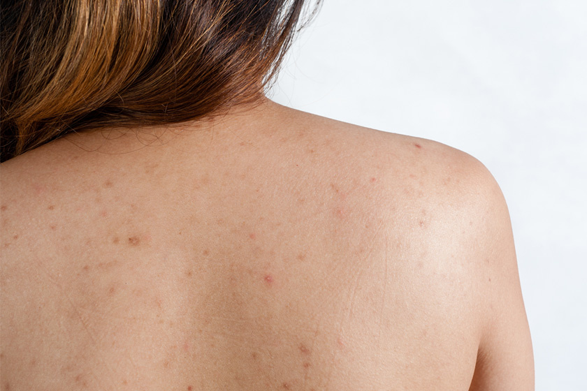 hogyan lehet megszabadulni a pattanások után jelentkező vörös foltoktól a bőrt vörös foltok és hólyagok borítják