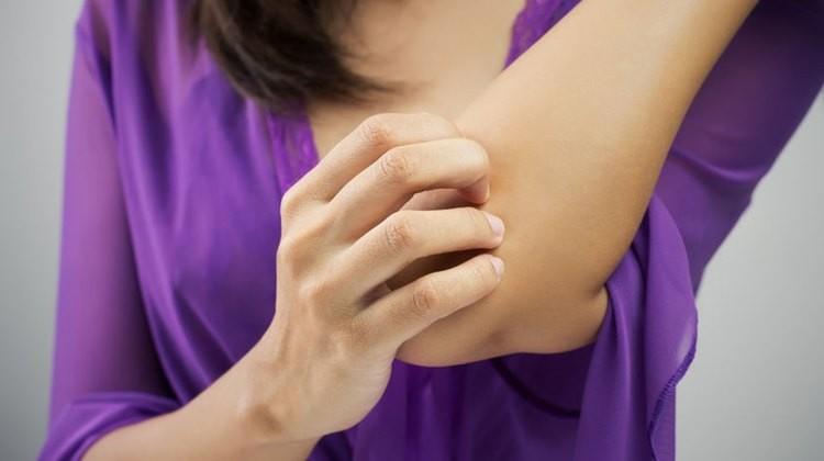 Pikkelysömör kezelése a tünetmentesség biztosításával