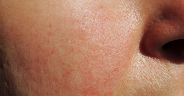 MediFat - VeinWave- hajszálértágulat kezelése