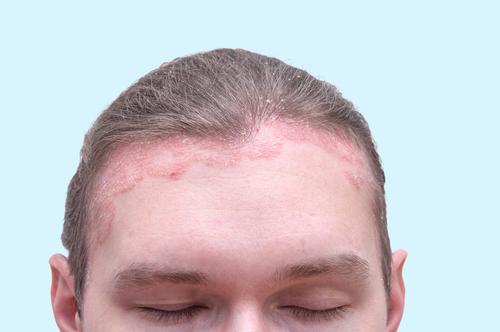 pikkelysömör fej kezelés fotó)