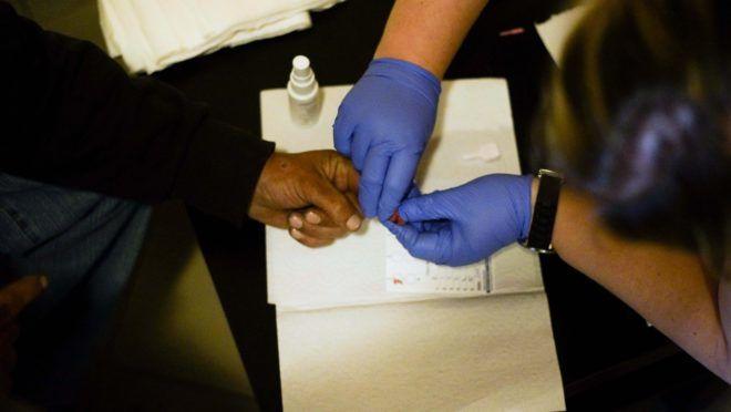 pikkelysömör hepatitis C kezeléssel jó krém az arc piros foltjai ellen