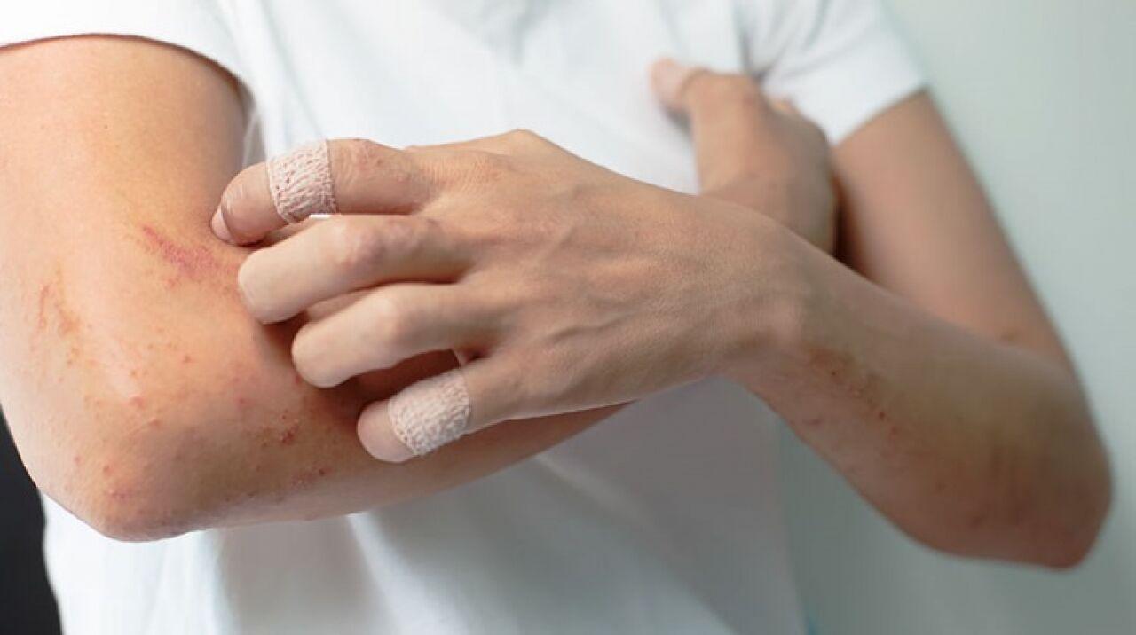 pikkelysömör kezelése 2020 orvostudomány gyógynövények pikkelysömör kezelése