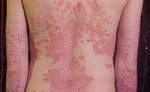 pikkelysömör kezelésének címe az összes bőrt vörös foltok borítják
