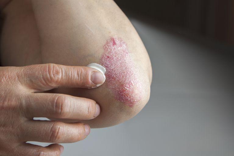 pikkelysömör kezelésének címe a könyök közelében vörös folt viszket