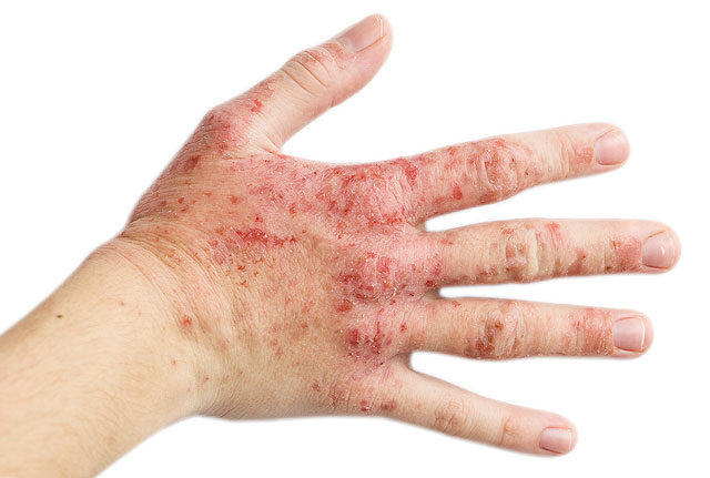 piros foltok a kezeken viszketnek és a lábakon fotó)
