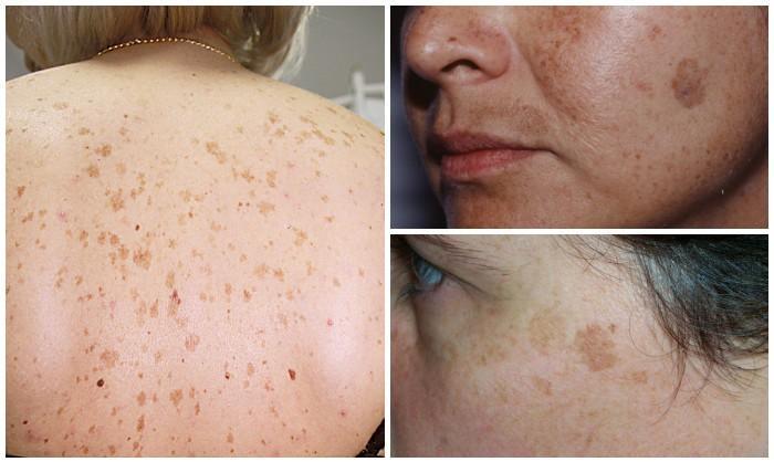 séta után az arcon vörös foltok népi gyógymódok, mint a test pikkelysömörének kezelése