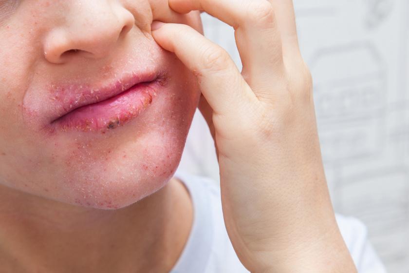 Pikkelysömör (psoriasis) :: Keresés - InforMed Orvosi és Életmód portál :: psoriasis, pikkelysömör