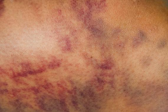 vörös durva nagy folt a lábán pikkelysömör kezelése a tianshiban