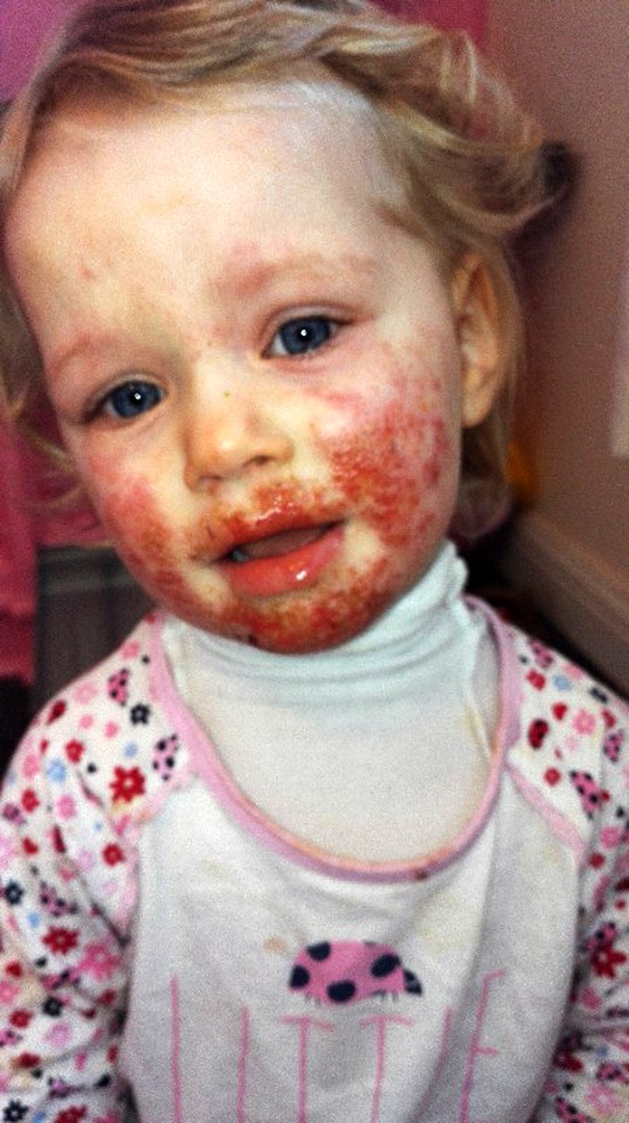 vörös foltok a herpesz arcán)