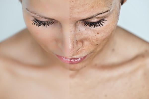 A bőrelváltozások típusai