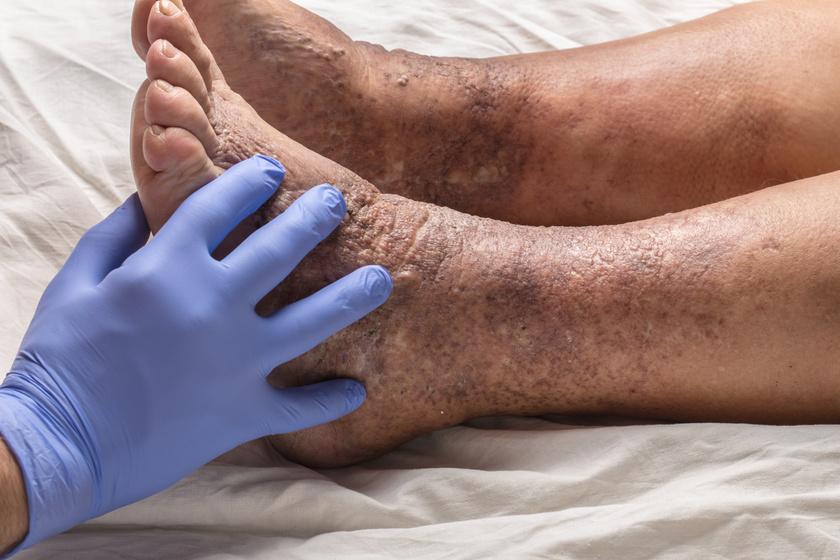 vörös foltok a lábak bőrén cukorbetegségben a könyökön vörös foltok vannak és viszket