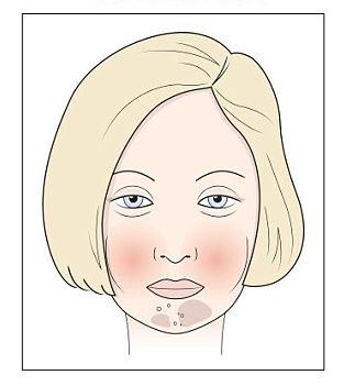 vörös foltok az arcon a tejtermékektől)