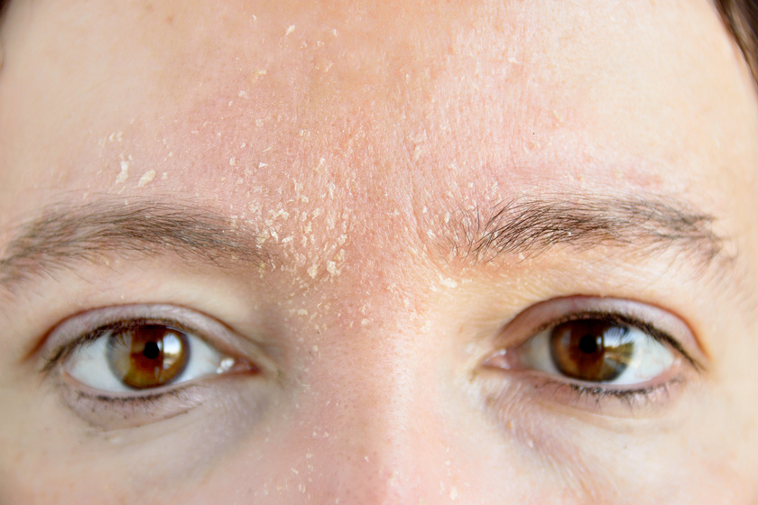 vörös foltok az arcon és a hámló fotó hatékony orvosság pikkelysömörre az arcon