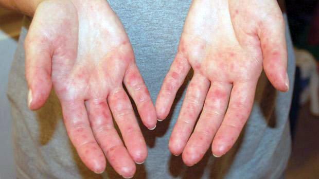 vörös foltok viszketnek a tenyerén és a kezén étrend-kiegészítők pikkelysömör kezelése